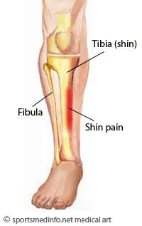 Shin Splints Sbr Sport