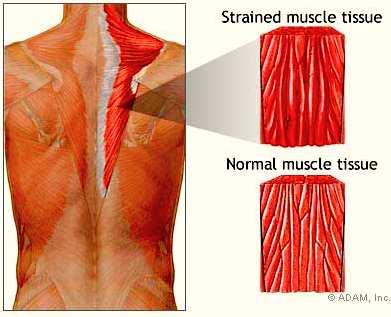 Хронический миозит мышц шеи