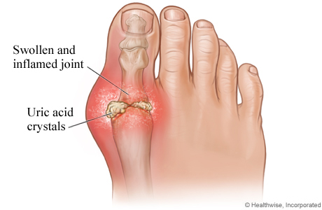 Big toe joint pain gout